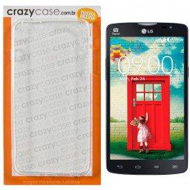 Capa TPU Transparente LG L80